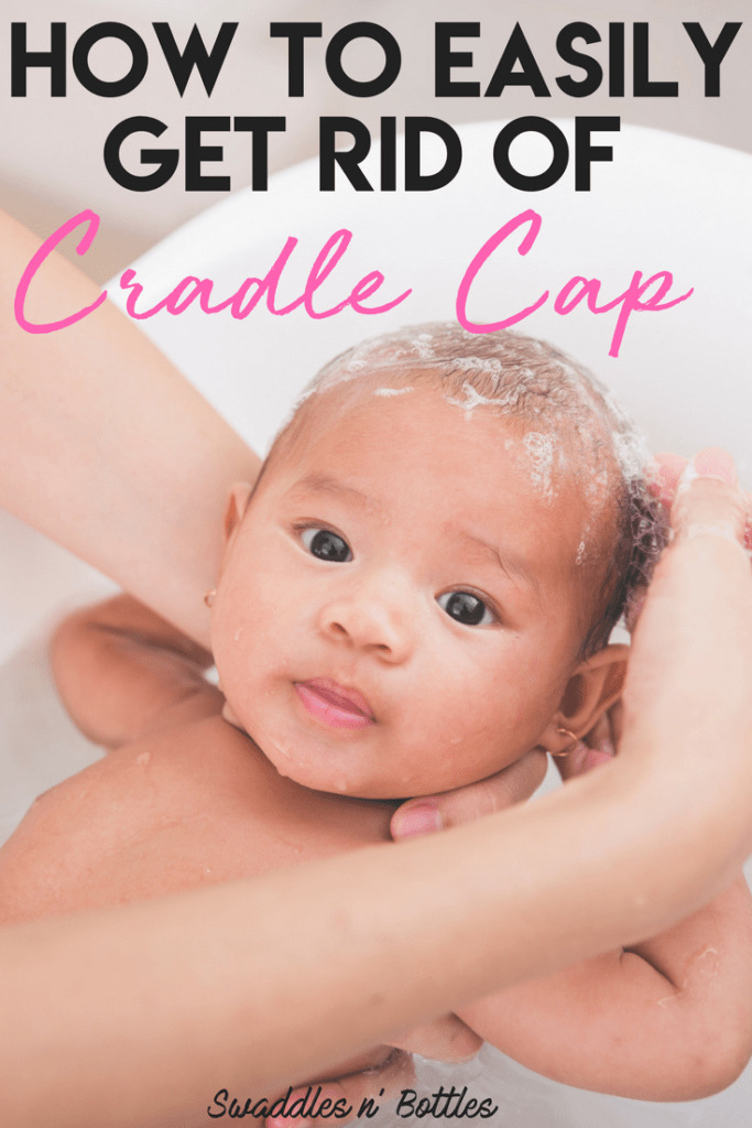 How to easily get rid of cradle cap
