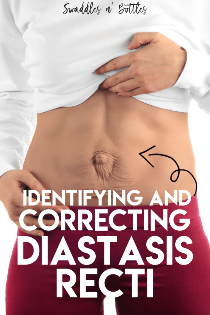Identifying and Correcting Diastasis Recti