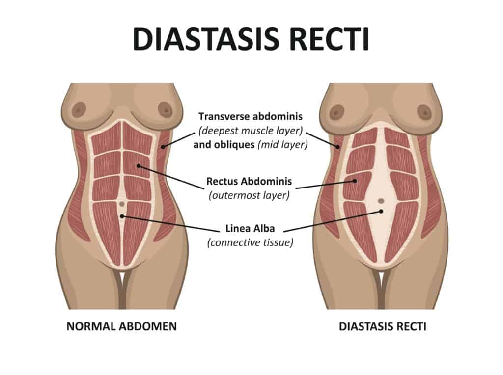 Identifying Diastasis Recti and how to correct it